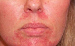 Лечение экземы на лице