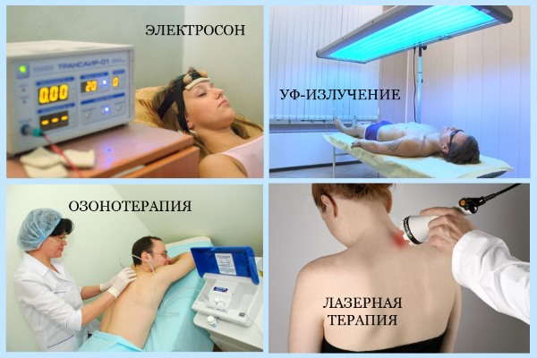 Физиопроцедуры при невралгии