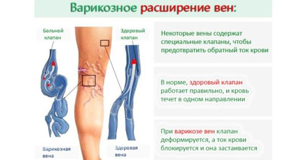 описание варикоза на ногах