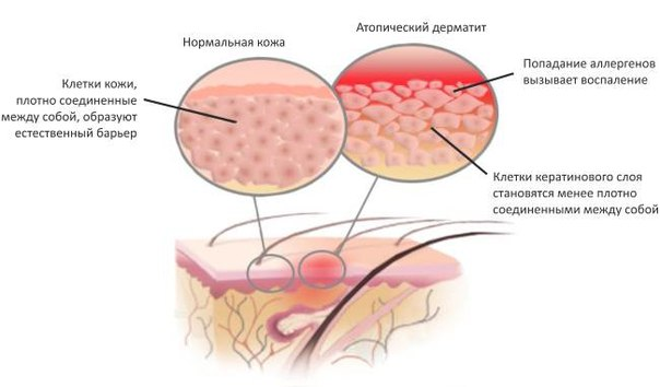 строение дермы