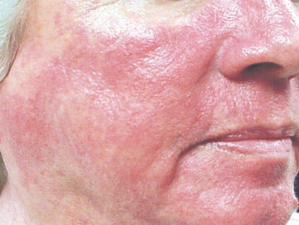 покраснение и отечность кожи