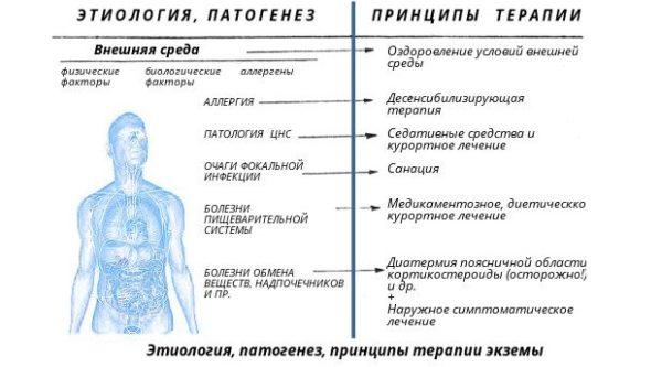 схема этиологии