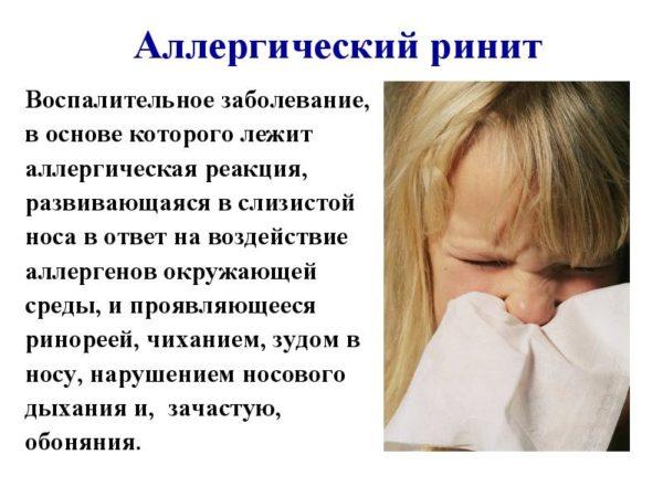 аллергический ринит и его описание