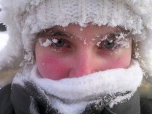 Холодовой дерматит: причины, симптомы
