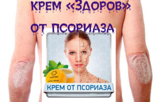 Крем «Здоров» для лечения псориаза