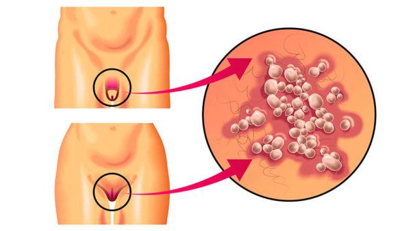 герпес на гениталиях