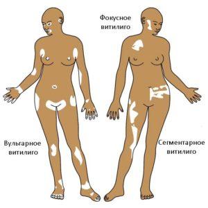 Описание болезни Витилиго — лечение и профилактика