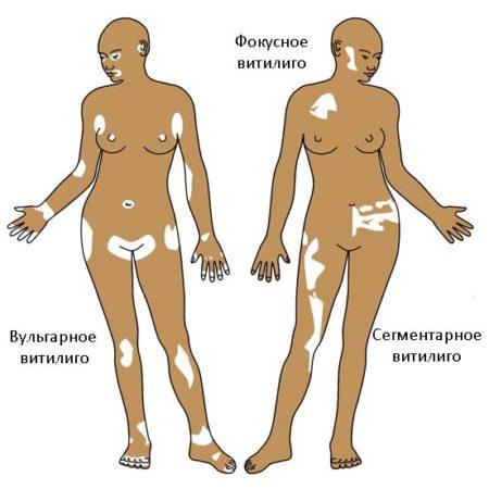 витилиго - виды болезни