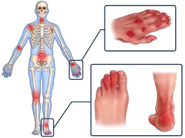Последствия псориаза и осложнения болезни