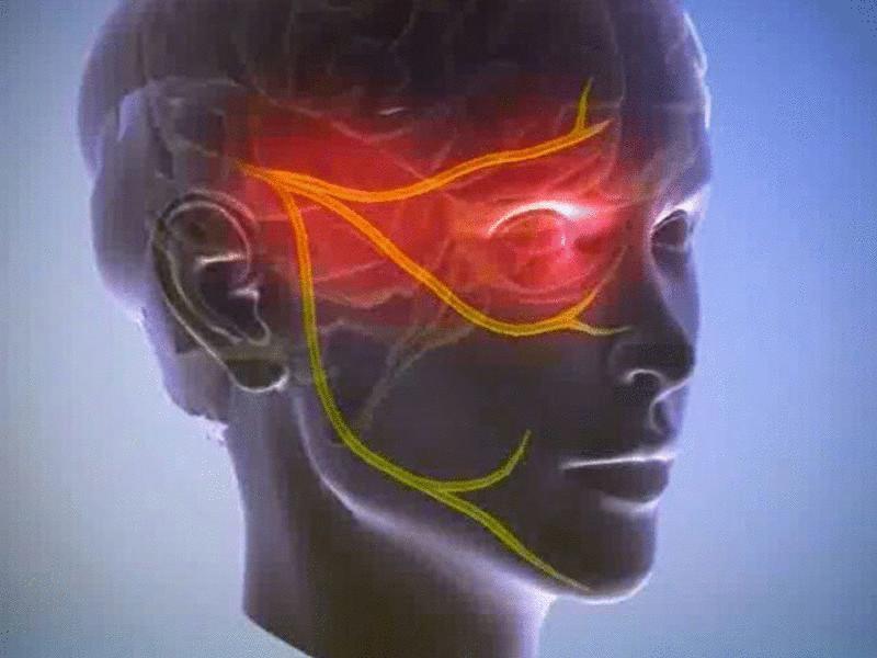 inflamed-facial-nerve-headache-eyebrow-hunziker-nuda-fuck