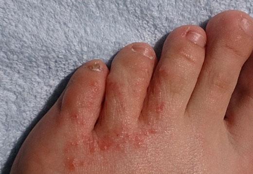 Опрелости ног и их лечение